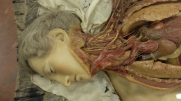 A Susini anatomical wax